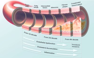Atherosclerosis - Dr. Greger Custom