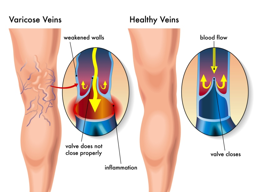 How Does Being Constipated Promote Varicose Veins