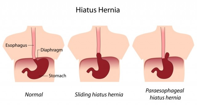 Is GERD a Symptom of a Hiatal Hernia?