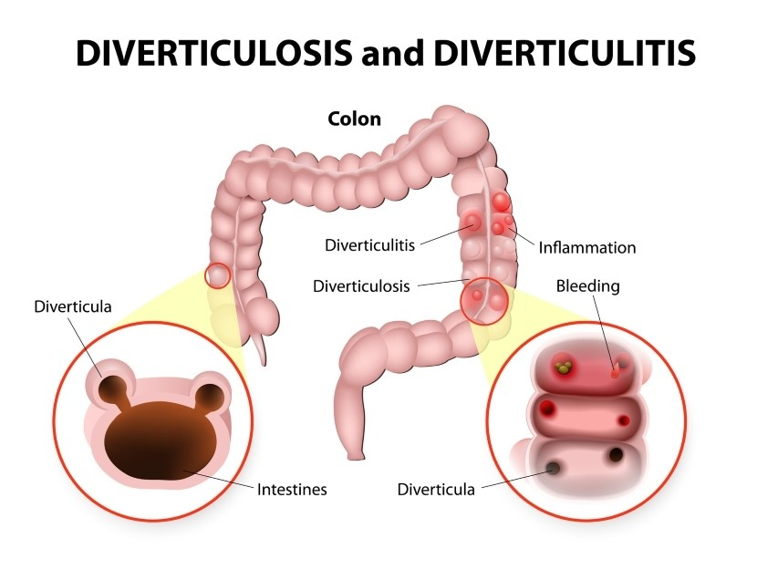 What is Diverticulosis and What Causes it?