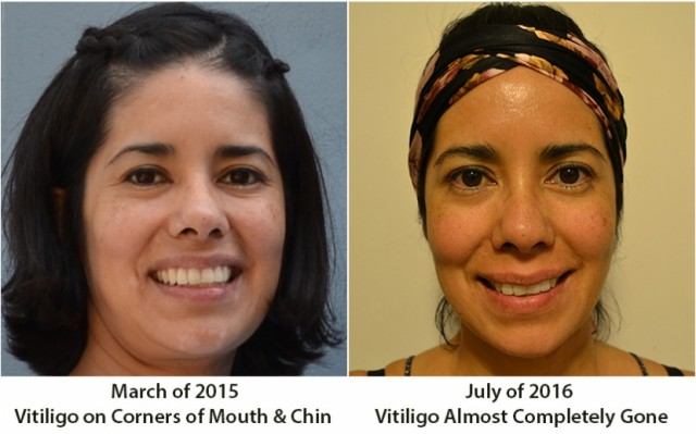 Pricy Experiences Vitiligo Going into Remission