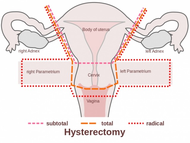 Laura Avoids Hysterectomy