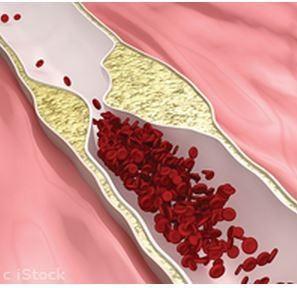 Vegans Have Lower Cholesterol