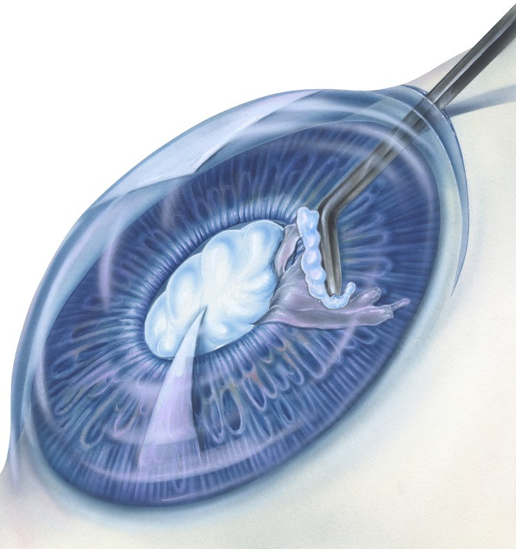 Statin Use Increases Cataract Risk