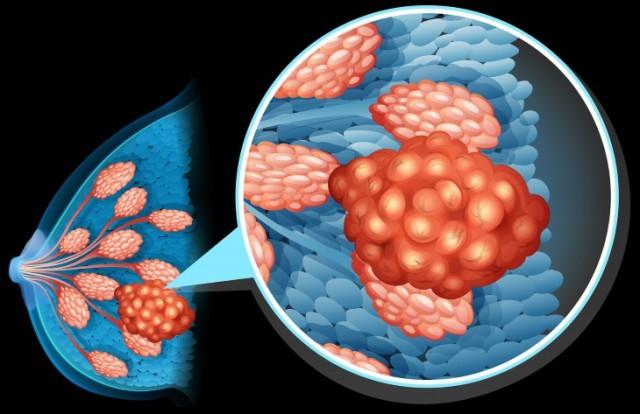 BreastCancerDiagram.w730.web