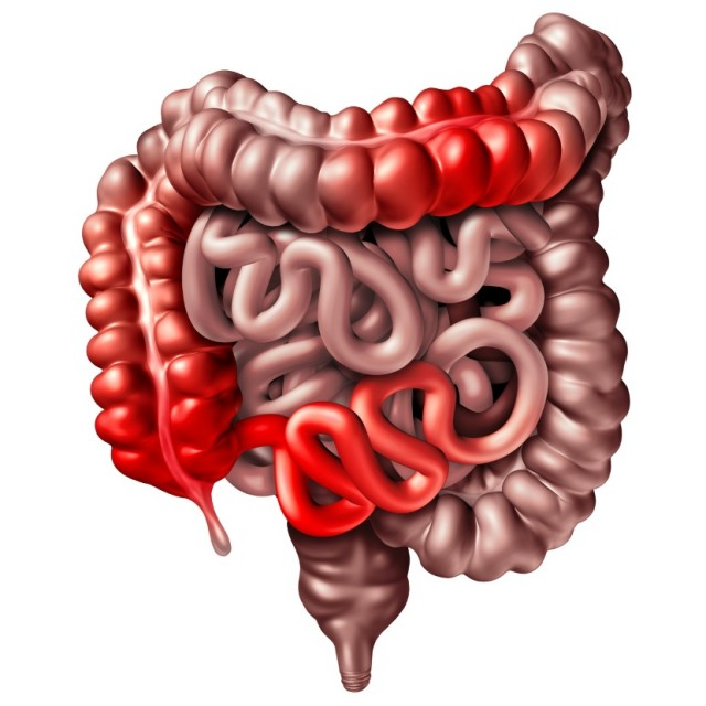 Illustration of Inflamed Large and Small Intestines