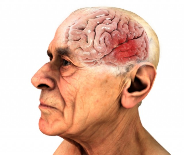 Old Man With Damaged Brain