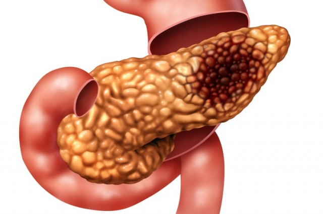 Pancreatic Cancer Illustration
