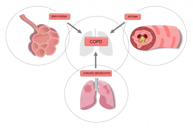 Types of Chronic Obstructive Pulmonary Disease (COPD)