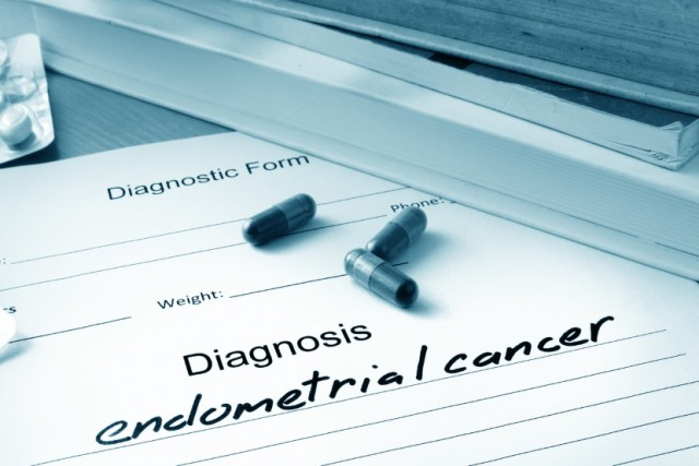 Dietary Fiber May Help to Avoid an Endometrial Cancer Diagnosis