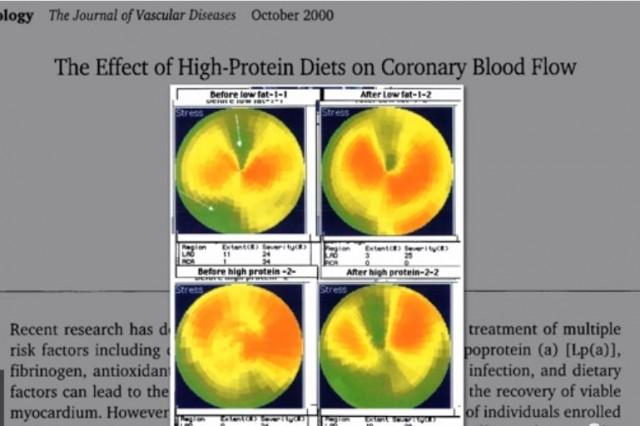 Low-Carb Diets Impair Blood Flow